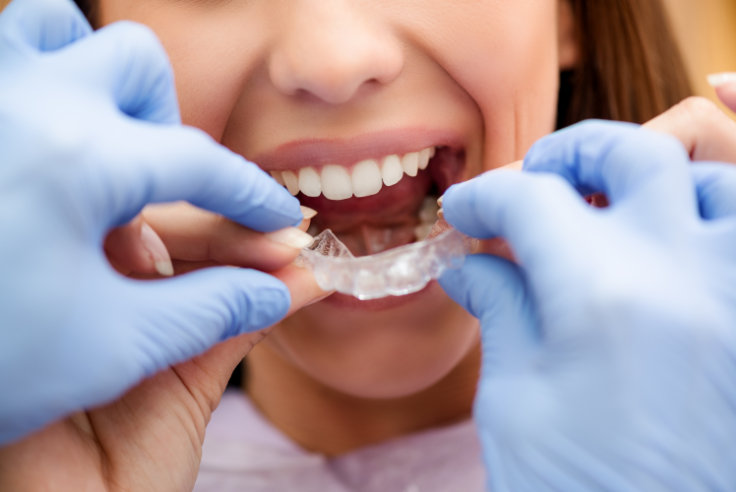 dentist putting clear braces on woman