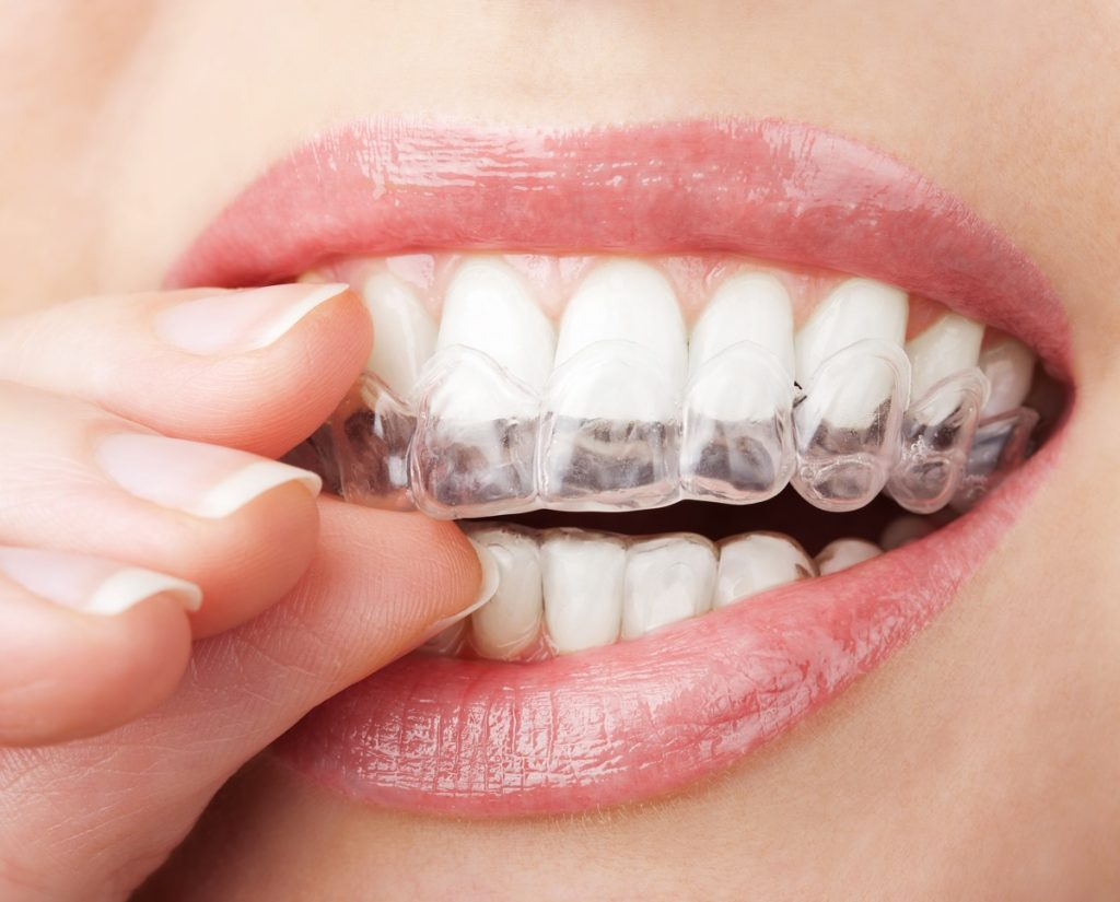 Woman about to wear her invisible braces