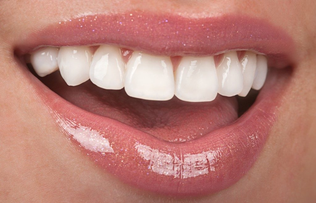 woman with really white teeth
